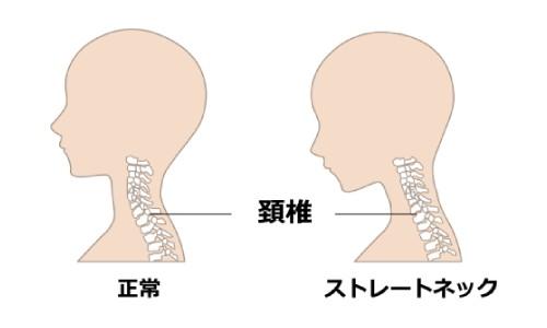頚椎はなぜ「く」の字?